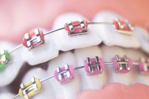 Aparat ortodontyczny a choroby jamy ustnej