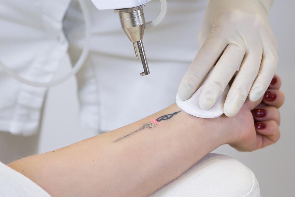 Laserowe usuwanie tatuażu oraz makijażu permanentnego – przebieg zabiegu i jego efekty